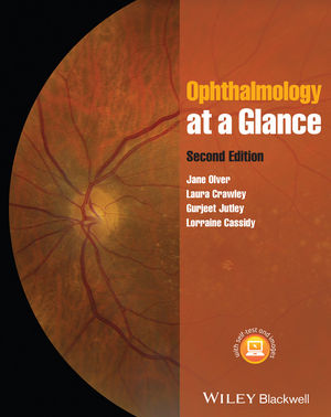 Ophthalmology at a Glance, 2nd Edition (EHEP003076) cover image