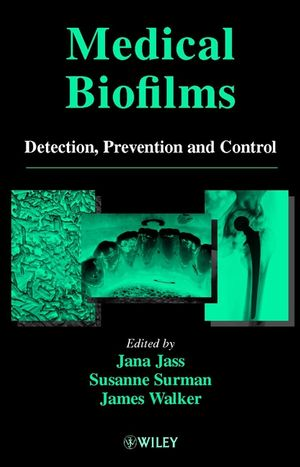 Medical Biofilms, Detection, Prevention and Control (0471988677) cover image