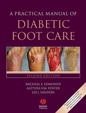 A Practical Manual of Diabetic Foot Care, 2nd Edition