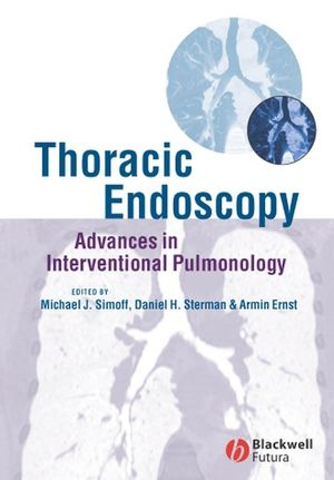 Thoracic Endoscopy: Advances in Interventional Pulmonology (047075527X) cover image