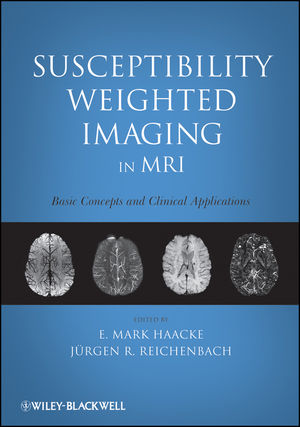 Susceptibility Weighted Imaging in MRI: Basic Concepts and Clinical Applications (111814807X) cover image