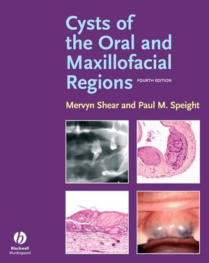 Cysts of the Oral and Maxillofacial Regions, 4th Edition