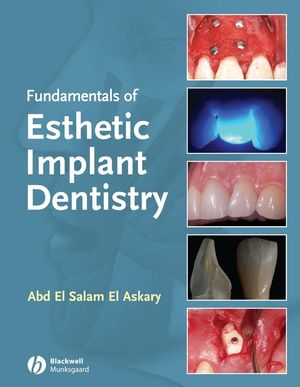 Fundamentals of Esthetic Implant Dentistry, 2nd Edition (0813814480) cover image