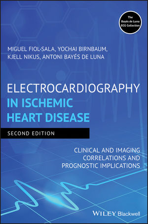 Electrocardiography in Ischemic Heart Disease: Clinical and Imaging Correlations and Prognostic Implications, 2nd Edition