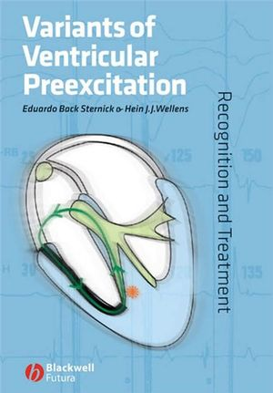 Variants of Ventricular Preexcitation: Recognition and Treatment (0470994983) cover image