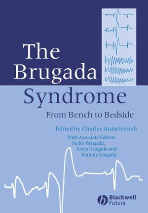 The Brugada Syndrome: From Bench To Bedside