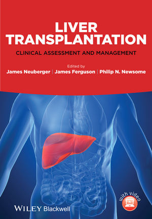 Liver Transplantation: Clinical Assessment and Management