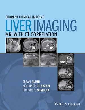 Liver Imaging: MRI with CT Correlation (1118484886) cover image