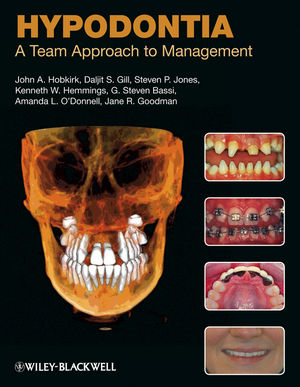 Hypodontia: A Team Approach to Management (1444329286) cover image