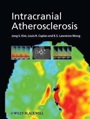 Intracranial Atherosclerosis (1444300687) cover image