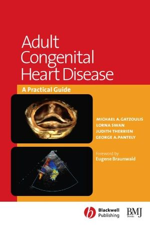 Adult Congenital Heart Disease: A Practical Guide (0727916688) cover image