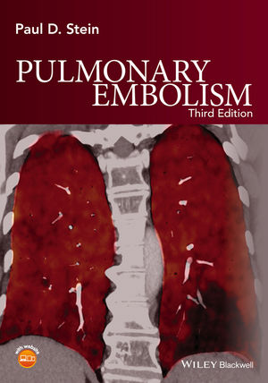 Pulmonary Embolism, 3rd Edition (1119039088) cover image