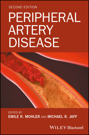 Peripheral Artery Disease, 2nd Edition (1118776089) cover image