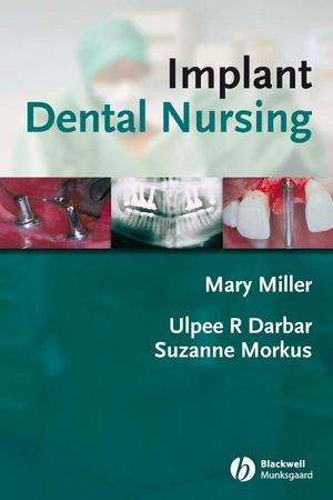 Implant Dental Nursing