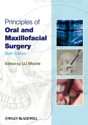 Principles of Oral and Maxillofacial Surgery, 6th Edition