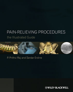 Pain-Relieving Procedures: The Illustrated Guide (047067038X) cover image