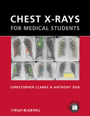 Chest X-rays for Medical Students (0470656190) cover image