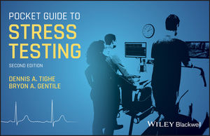 Pocket Guide to Stress Testing, 2nd Edition