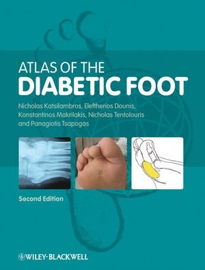 Atlas of the Diabetic Foot, 2nd Edition (1405191791) cover image