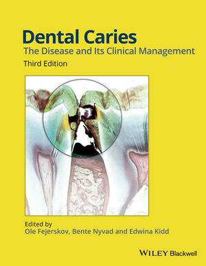 Dental Caries: The Disease and its Clinical Management, 3rd Edition (EHEP003391) cover image