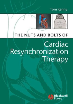 The Nuts and Bolts of Cardiac Resynchronization Therapy (0470751592) cover image