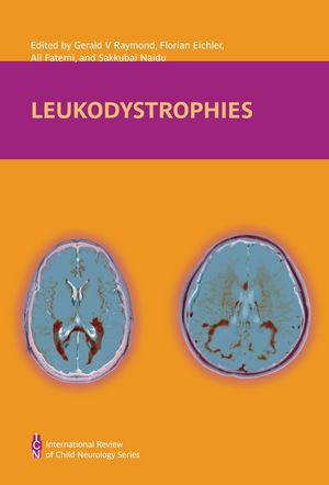 Leukodystrophies