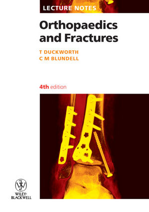 Lecture Notes: Orthopaedics and Fractures, 4th Edition (1405133295) cover image