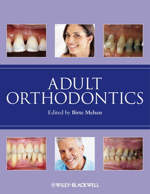 Adult Orthodontics (1405136197) cover image