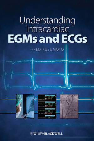 Understanding Intracardiac EGMs and ECGs (1444360698) cover image