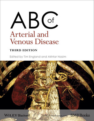 ABC of Arterial and Venous Disease, 3rd Edition (EHEP003298) cover image