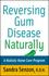 Reversing Gum Disease Naturally: A Holistic Home Care Program (0471222305) cover image