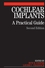 Cochlear Implants: A Practical Guide, 2nd Edition (1861564813) cover image