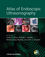 Atlas of Endoscopic Ultrasonography (1405157216) cover image