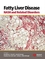 Fatty Liver Disease: NASH and Related Disorders (1405112921) cover image