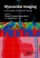 Myocardial Imaging: Tissue Doppler and Speckle Tracking (1405161132) cover image