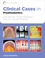 Clinical Cases in Prosthodontics (0813816645) cover image