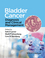 Bladder Cancer: Diagnosis and Clinical Management (1118674847) cover image