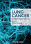 Lung Cancer: A Multidisciplinary Approach (1405180757) cover image
