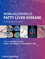 Non-Alcoholic Fatty Liver Disease: A Practical Guide (0470673176) cover image