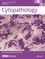 Cytopathology (CYT) cover image