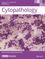 Cytopathology (CYT) cover image