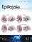 Epilepsia (EPI) cover image