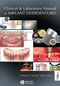 Clinical and Laboratory Manual of Implant Overdentures (0813808812) cover image