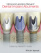 Clinical and Laboratory Manual of Dental Implant Abutments (1119949815) cover image