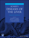Schiff's Diseases of the Liver, 12th Edition (1119251222) cover image