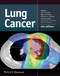 Lung Cancer, 4th Edition (1118468740) cover image