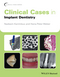 Clinical Cases in Implant Dentistry (111870214X) cover image