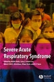 Severe Acute Respiratory Syndrome: A Clinical Guide (1405130318) cover image
