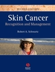 Skin Cancer: Recognition and Management, 2nd Edition (1405159618) cover image