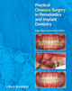 Practical Osseous Surgery in Periodontics and Implant Dentistry (0813818125) cover image